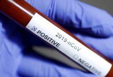 Photo of France orders 50,000 doses of new Covid pill molnupiravir